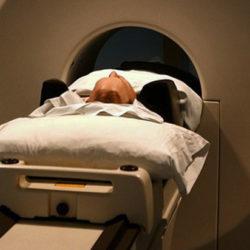 ВИЧ в мозге научились выявлять при помощи МРТ