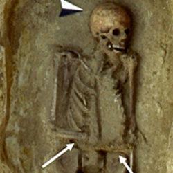 Обнаружен скелет средневекового итальянца с ножом вместо руки