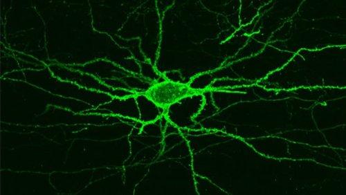 Новая технология съемки позволяет увидеть электрическую деятельность тканей головного мозга