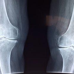 Пора переломов: шесть способов избежать весенних травм