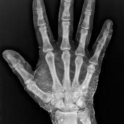 Почему у человека пять пальцев ?