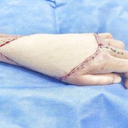 Московские хирурги прооперировали «руку терминатора»