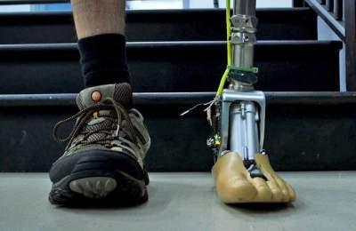 Разработана подвижная искусственная лодыжка